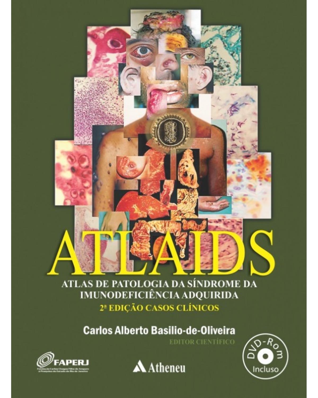 ATLAIDS - atlas de patologia da Síndrome da Imunodeficiência Adquirida - 2ª Edição | 2015