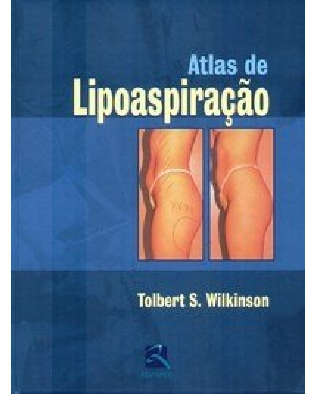 Atlas de lipoaspiração: manual prático - 1ª Edição | 2006