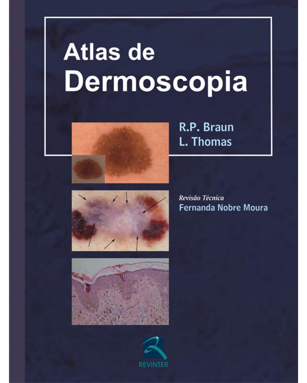 Atlas de dermoscopia - 1ª Edição | 2010