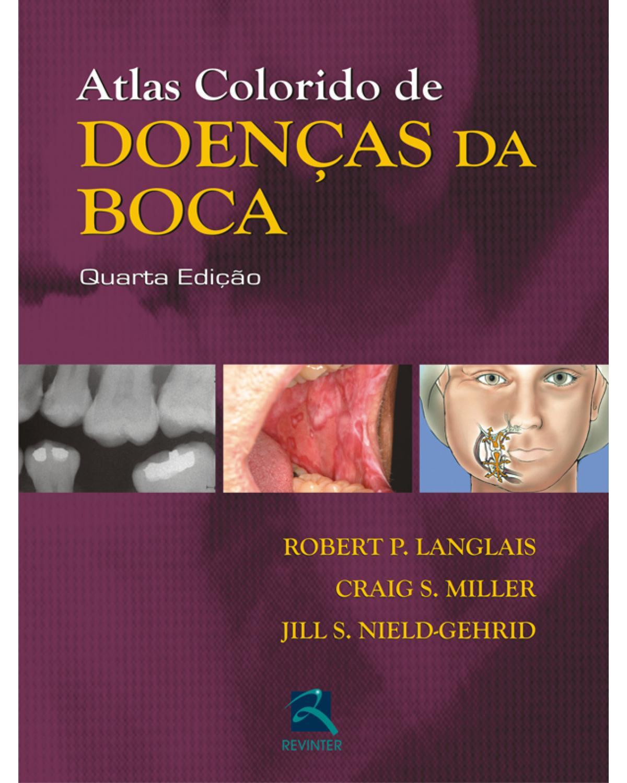 Atlas colorido de doenças da boca - 4ª Edição | 2010