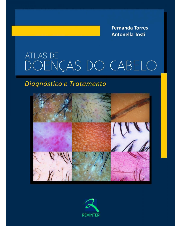 Atlas de doenças do cabelo - diagnóstico e tratamento - 1ª Edição | 2013