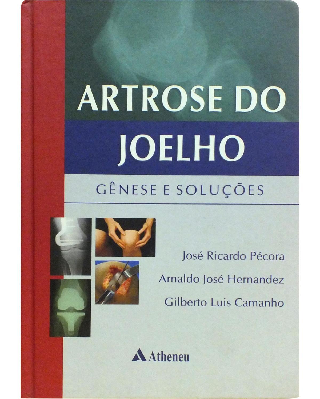Artrose do joelho: Gênese e soluções - 1ª Edição   2010